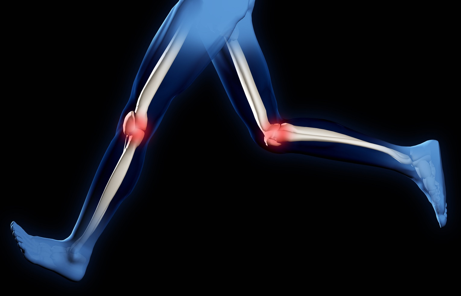 pain-in-knee-joints-l_50
